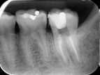 radiograph image of a tooth with root canal filling